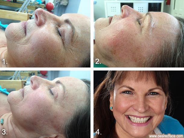 Facial Workout Results - Desiredface - European Facial Workout - California - www.desiredface.com